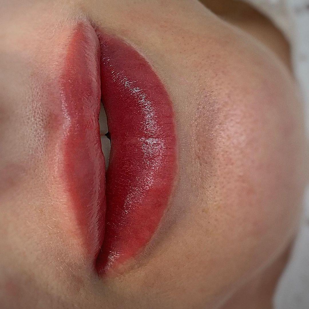 ПМ губ сразу после первой процедуры   Хабаровск