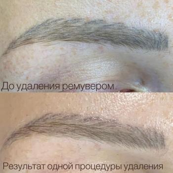 Удаление микроблейдинга с бровей ремувером | Хабаровск